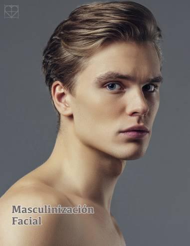 Masculinización facial con Volux